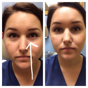 Left is before picture, the arrow points to where I injected her. Right is after one syringe of Belotero.