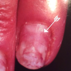 The arrow is pointing to where the damaged nail starts, you can see where healthy nail is starting to grow.