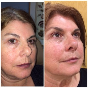 "Left is before injection in January and right is about 3 months after voluma. In this picture notice the curvature in HER left cheek (it's on the right in the picture). Notice how much ""flatter"" she was prior to injection. Her right jowl is lifted beautifully as well."