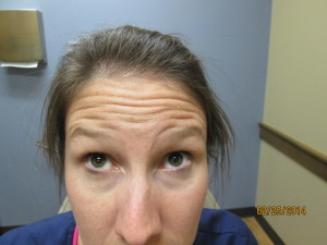 Raising eyebrows prior to injections of Xeomin