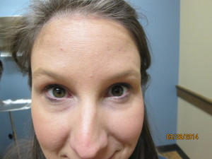 Raising eyebrows two weeks after injections of Xeomin